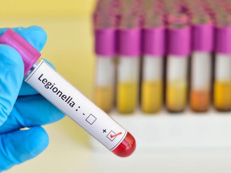 Legionella: Il rischio biologico in ambiente di lavoro